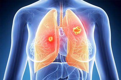 肺癌三代靶向药如何选择
